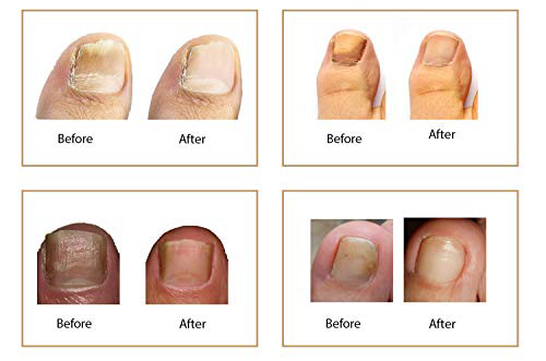 fungus eliminator before after