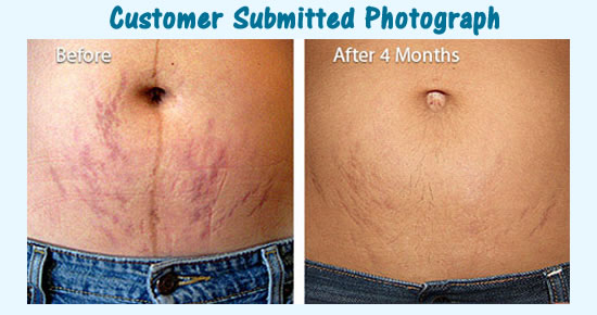 trilastin customer before after